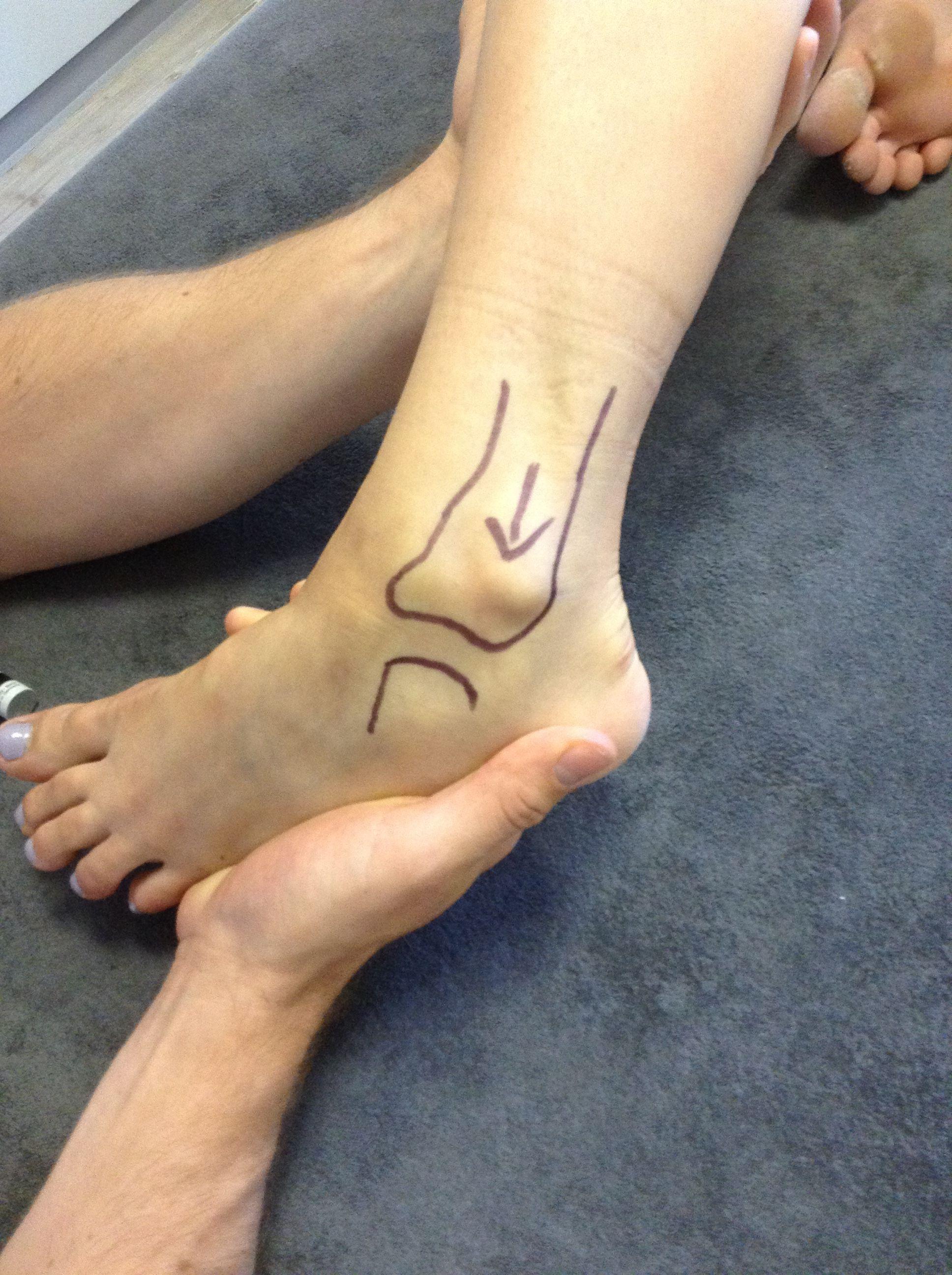 Anatomie des Sprunggelenks
